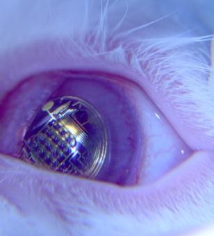 Bioničko oko,