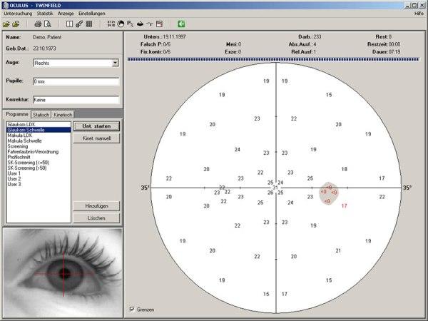kompjuterizovano vidno polje
